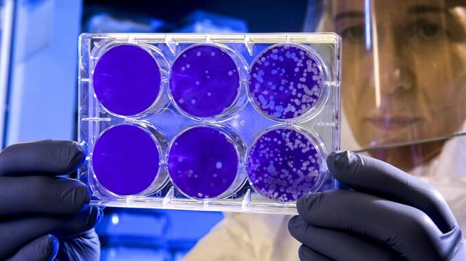 Singapurští vědci zjišťovali, jak dlouho jsou pacienti s COVID-19 infekční.