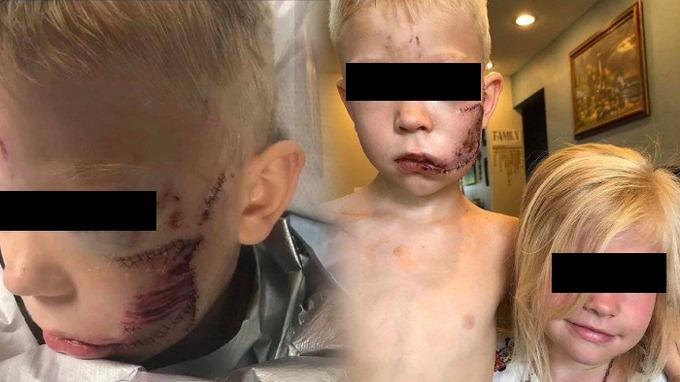 Bratr ochránil sestru za cenu zranění.