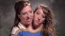 Dvojčata Abby a Brittany čekají na pravou lásku