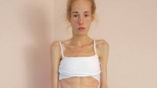 Gemma Walkerová porazila anorexii a poté bulimii