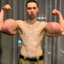 'Popeye' , 24, admits his 'stupidity' as he undergoes surgery to remove fake muscles from bulging triceps