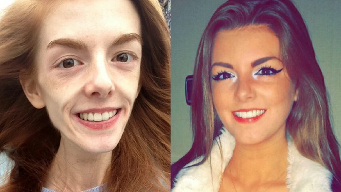 Annie Windleyová dokázala překonat anorexii